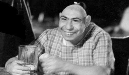 Top 5 Famous Sideshow Performers - Pinhead schlitzie